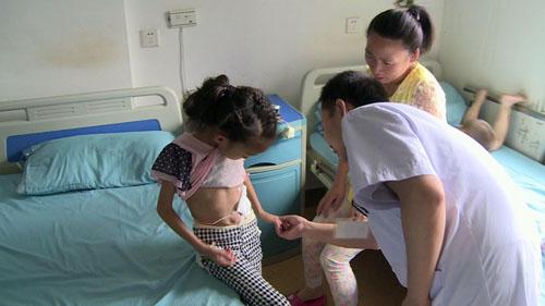 长春市5家医院定点救助先天性结构畸形患儿